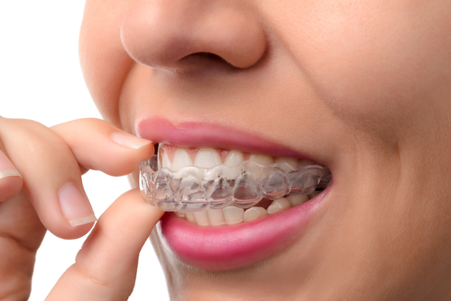 Invisalign Evalaution & Treatment